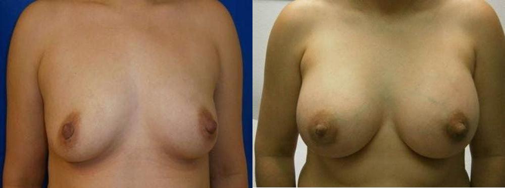 Breast Procedures Glendora