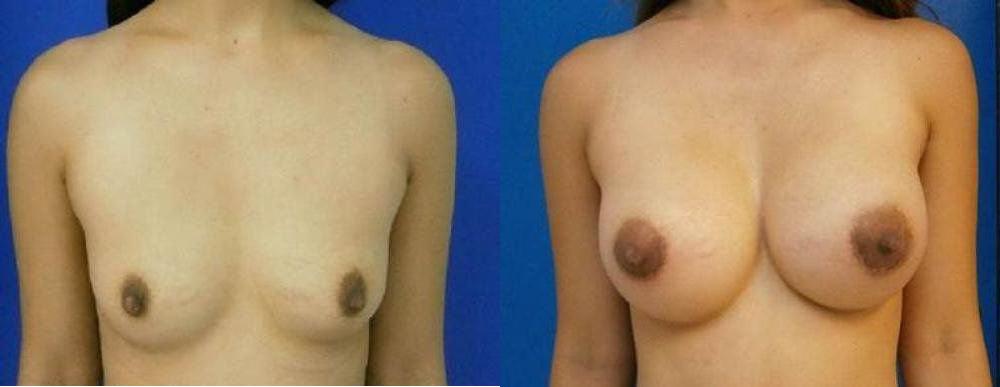 Breast Augmentation Procedures Glendora
