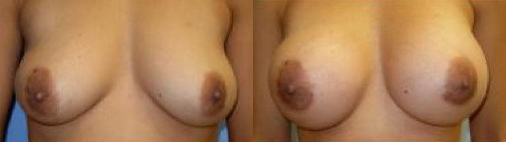 Breast Augmentation Treatment Glendora