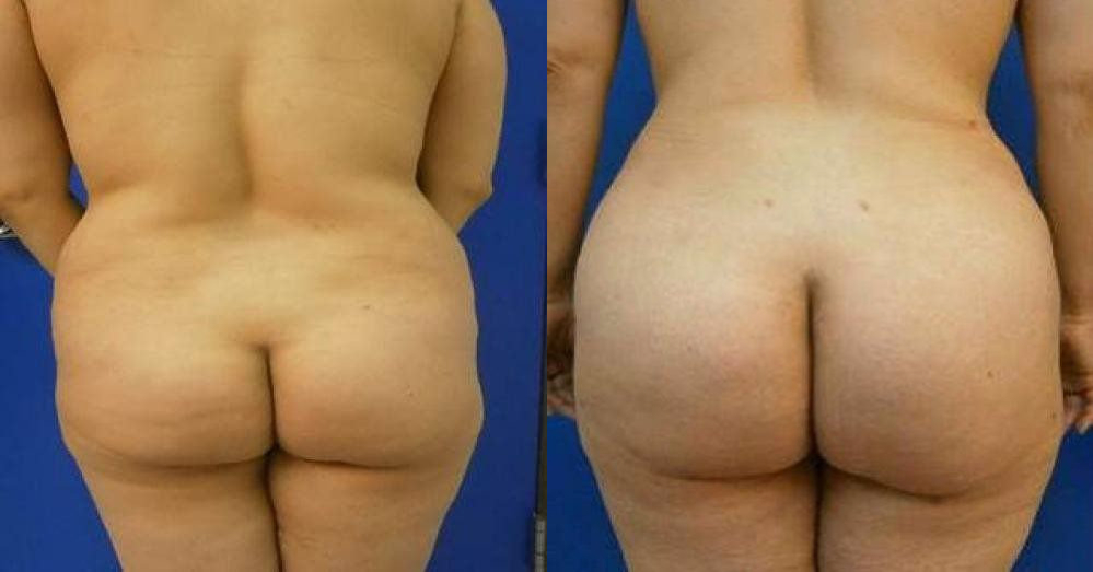 Brazilian Butt Lift Treatment Glendora