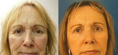 Fat Transfer to Face Treatment Glendora